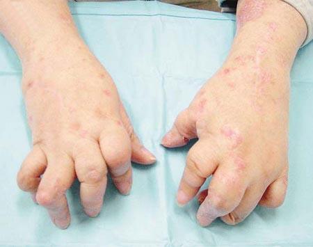 关节型银屑病症状有哪些