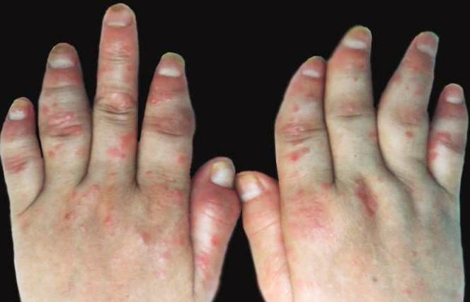 关节型牛皮癣有哪些临床表现