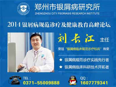 郑州哪家医院治银屑病权威
