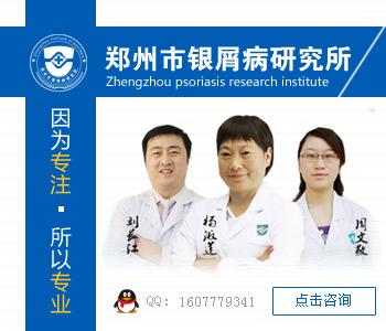 郑州哪家医院治疗牛皮癣效果好