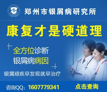 郑州治疗牛皮癣有名的医院