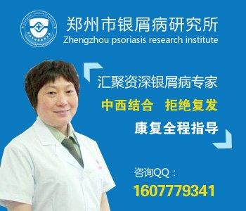 郑州牛皮癣治疗中心