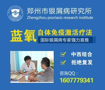 郑州哪个医院专业治疗牛皮癣