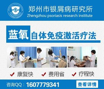 郑州专治牛皮癣的医院哪家最好