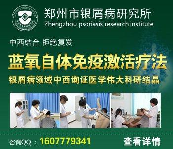 郑州治疗牛皮癣正规医院