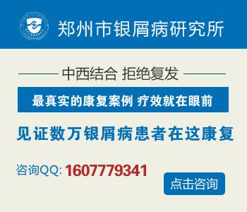 郑州专业治疗牛皮癣