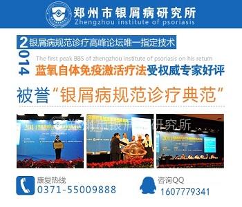 郑州市银屑病研究所怎么样
