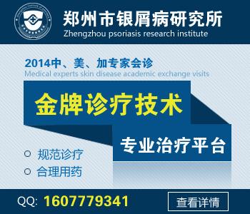 郑州牛皮癣医院排名
