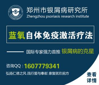 郑州专门治疗银屑病的医院
