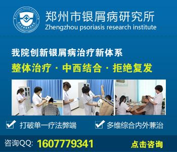 郑州看银屑病医院哪个权威