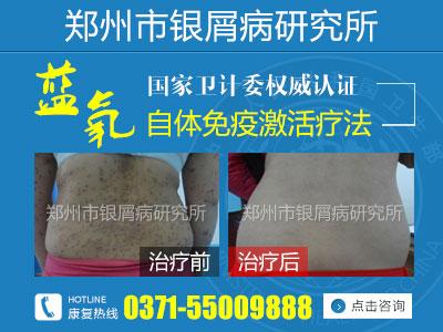 郑州银屑病治疗医院哪个权威
