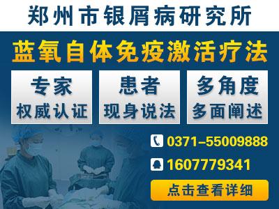 郑州银屑病研究所治疗效果怎么样