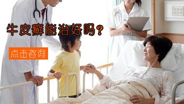 郑州治疗牛皮癣效果怎么样?jpg
