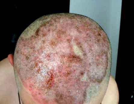 头部银屑病症状是什么